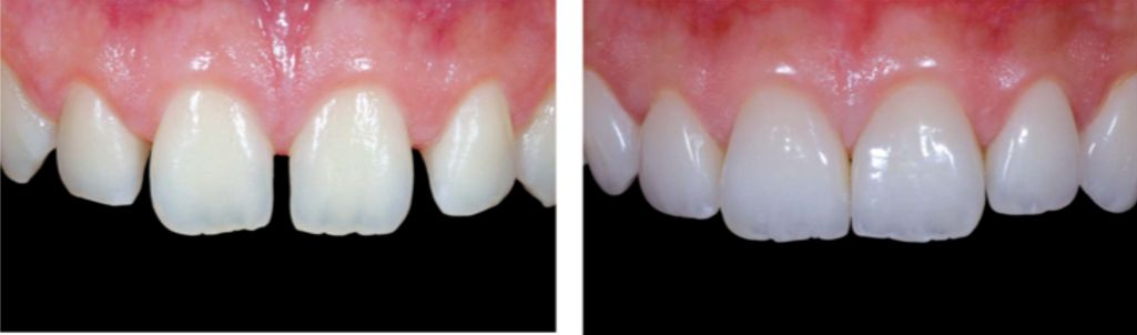 Estetica Dental Antes y Despues