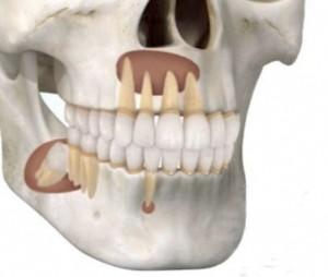 Cirugia Oral y Maxilofacial